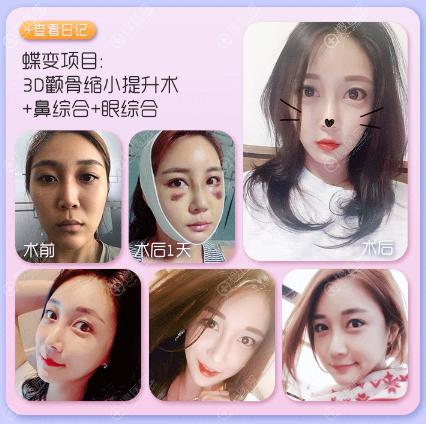 上海DA.美联臣刘先超做的双眼皮隆鼻和颧骨整形案例