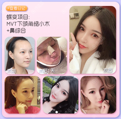 上海da美联臣李湘雨做的下颌角和隆鼻案例