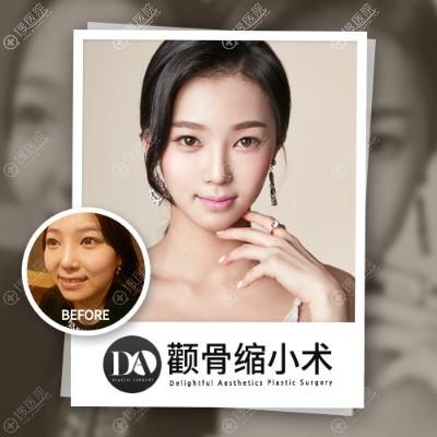 上海da美联臣李湘雨颧骨内推案例