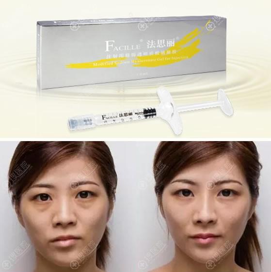 注射法思丽长效玻尿酸隆鼻案例