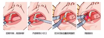 颊脂垫去除手术方法示意图