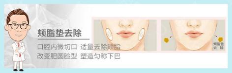 上海首尔丽格崔荣达颊脂垫祛除示意图