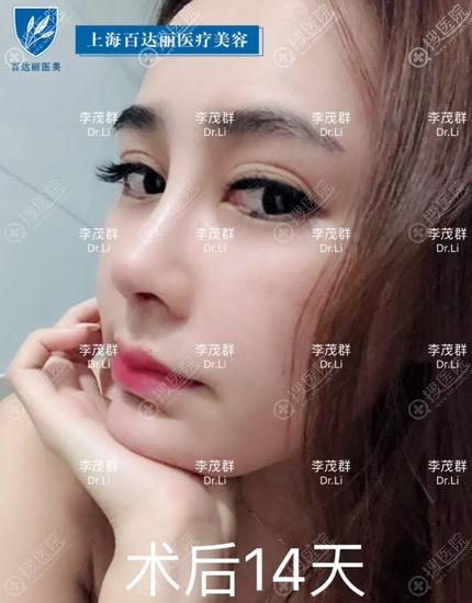 上海伯思立(百达丽)李茂群隆鼻案例效果图
