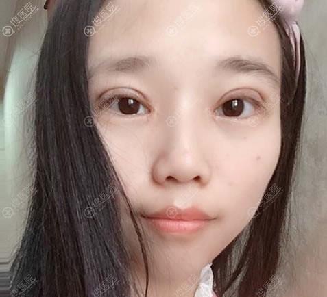 南京亚韩整容医院双眼皮开眼角案例