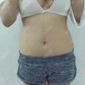 在南京美贝尔做吸脂的术前照片