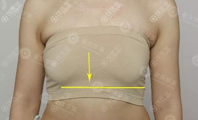 重庆华美隆胸术前照片