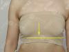 为了重拾自信我去重庆华美找赵敬国做了假体隆胸和乳房下垂矫正