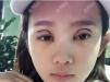 找了很久终于在重庆华美整形医院找到曹仁昌做了双眼皮失败修复