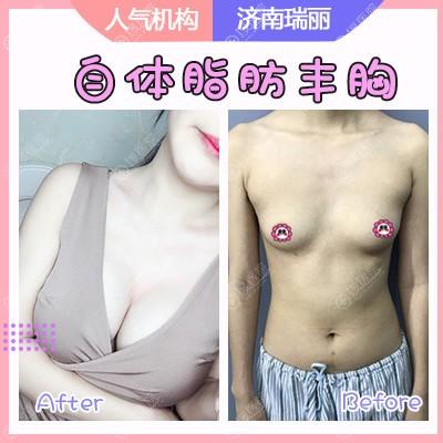 济南瑞丽刘明飞院长自体脂肪丰胸案例