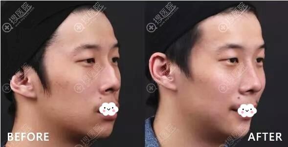 兰州皙妍丽鼻综合隆鼻案例效果对比图