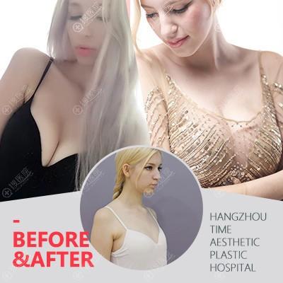 重庆时光胡斌做的假体隆胸案例