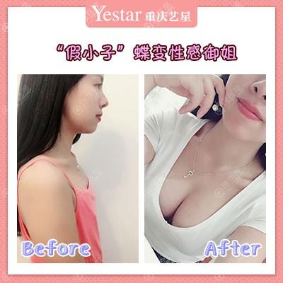 重庆yestar整形朱家旭做的假体隆胸案例