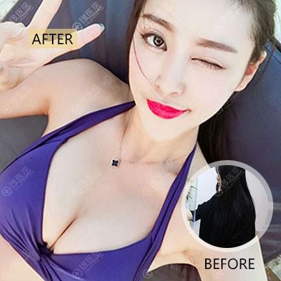 重庆yestar黄彪做的自体脂肪隆胸案例