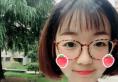 出国前妈妈陪我去杭州华山连天美找盛飞主任做了双眼皮眼综合