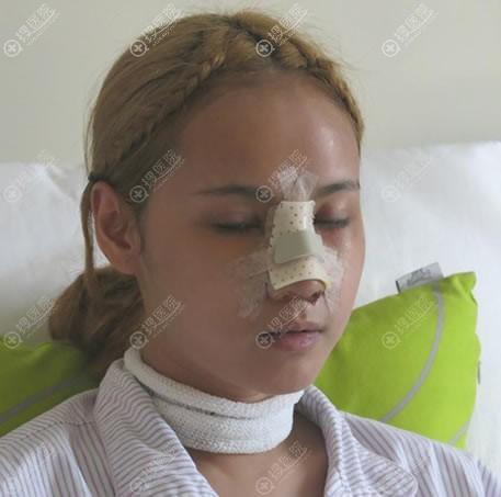 北京沃尔整形隆鼻手术即刻效果