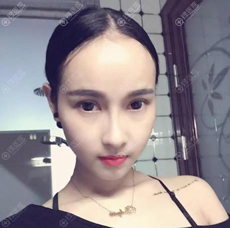 北京沃尔医疗美容隆鼻案例
