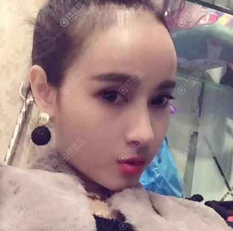 北京沃尔冯雁平做鼻子案例