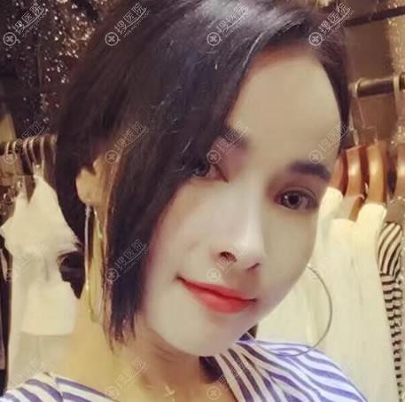 北京擅长做鼻子冯雁平医生案例