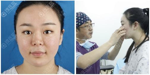 与南京维多利亚李志生面诊隆鼻修复