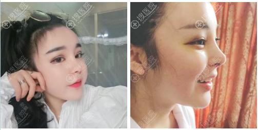 南京维多利亚李志生隆鼻修复术后八天
