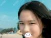 在深圳仁安雅找苗春来全切双眼皮+提肌术后1年恢复过程图