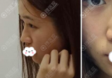 专程从外地找西安壹加壹整形医院王俊河做硅胶加耳软骨隆鼻手术