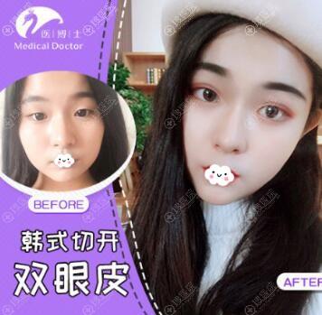 佛山医博士刘哲韩式切开双眼皮案例对比图