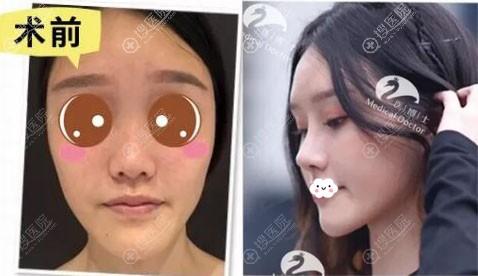 佛山医博士刘哲隆鼻案例前后效果对比