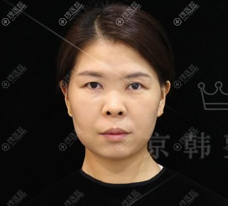北京京韩做全切双眼皮手术前