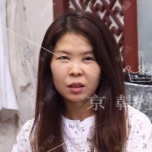 北京京韩做生物焊接双眼皮前