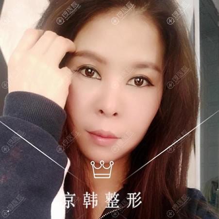 北京京韩整形张振双眼皮案例