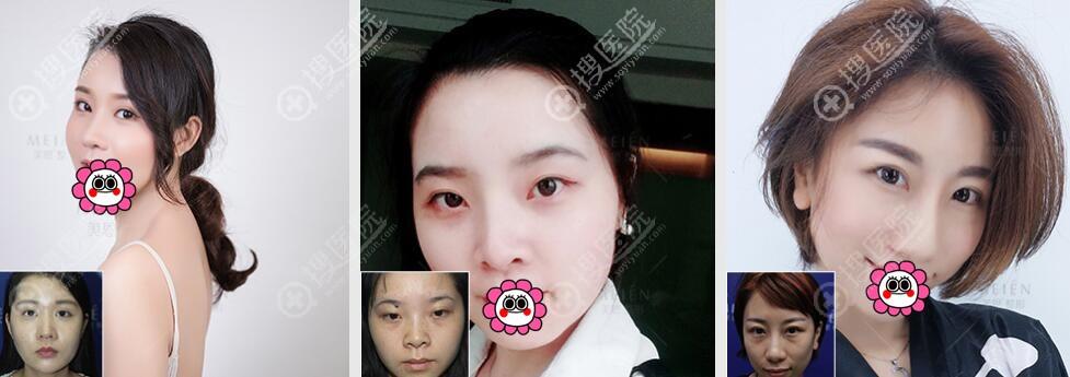 广州美恩线雕祛斑美肤效果