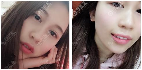 上海尤旦口腔牙齿矫正案例