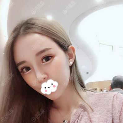 深圳美莱周洪超全切双眼皮术后40天