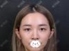 深圳美莱医疗美容医院周洪超全切双眼皮术后40天恢复图