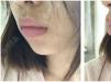 为了改善凸嘴我去上海尤旦口腔医院做了时代天使隐形牙齿矫正