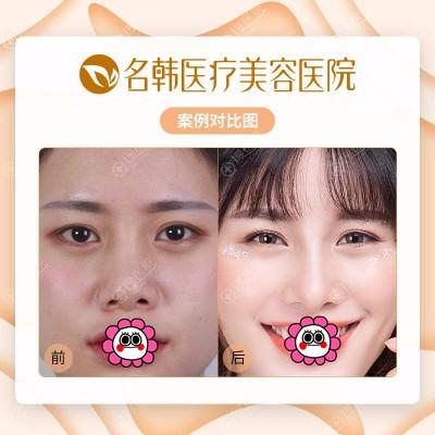 广州名韩鼻部整形案例对比
