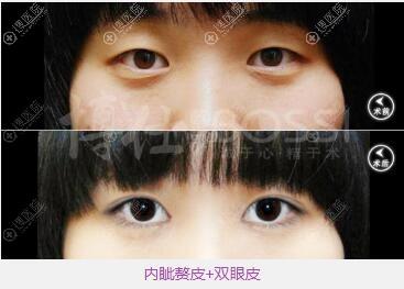 广州博仁张建军做的双眼皮术后眼睛更有神