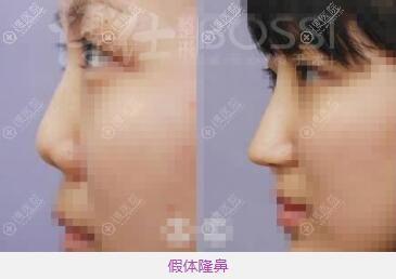 广州博仕李帅敏假体隆鼻前后对比