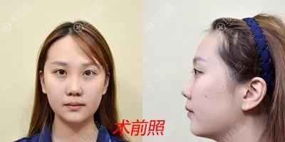 兰州皙妍丽做隆鼻和面部填充前