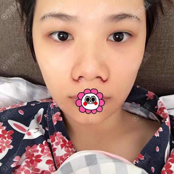 到广州荔湾医疗美容中心做鼻翼缩小3天