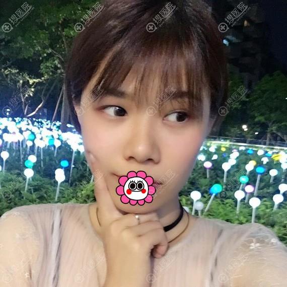 广州荔湾医学整形中心鼻翼缩小恢复后效果