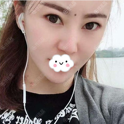李正强面部吸脂瘦脸术后8个月