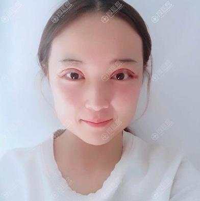 去临沂瑞丽割完双眼皮3天了