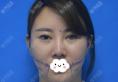 去深圳仁安雅找李政权做了面部吸脂瘦脸只为摆脱家族遗传大饼脸