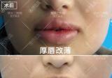 打造迷人双唇的秘密:郑大二附院厚唇改薄、玻尿酸丰唇案例分享