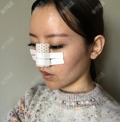 来郑州华领做鼻综合隆鼻修复