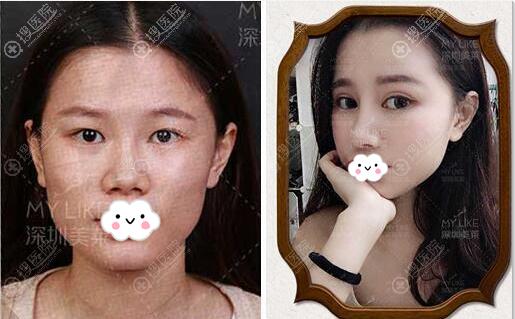 深圳美莱双眼皮+上睑下垂矫正案例