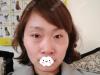 遭受家暴后,我选择在深圳仁安雅做面部脂肪填充隆鼻的内心独白