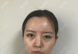 玻尿酸隆鼻变宽变丑后我去郑州华领找贺小虎做了鼻综合隆鼻修复